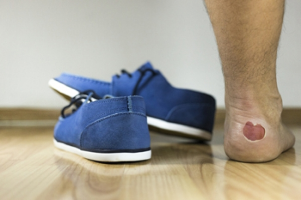 Reasons Blisters Can Develop on the Feet