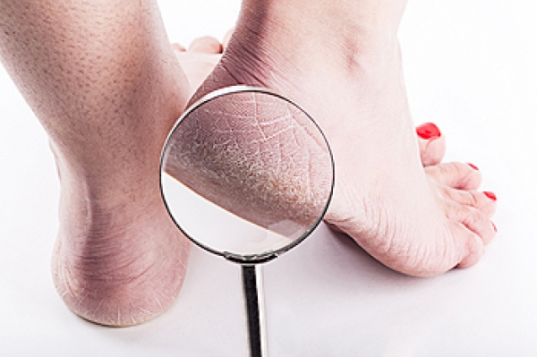 Moisturize for a quick Cracked Heels Remedy