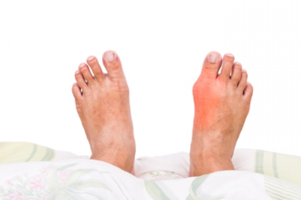 Common Reasons Why Bunions May Occur