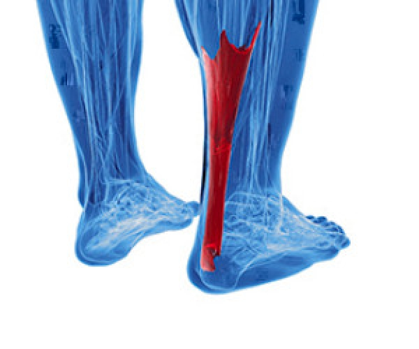 Achilles Tendon and Overuse
