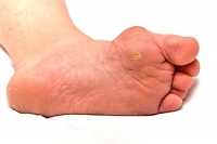 Bunions May Lead to Additional Foot Conditions