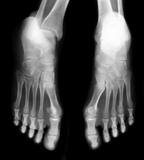 How Stress Fracture Healing Time May Be Linked to BMI