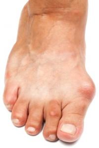Winter Shoes May Affect Bunions
