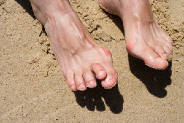 Deformity In the Toe Joints May Cause Hammertoe