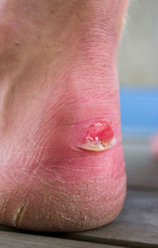 What Causes Blisters?