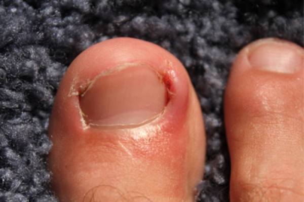 What is an Ingrown Toenail?
